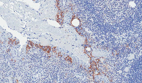 PD-L1 Staining